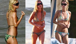 Bikini Poll of the Week: Nicky Hilton